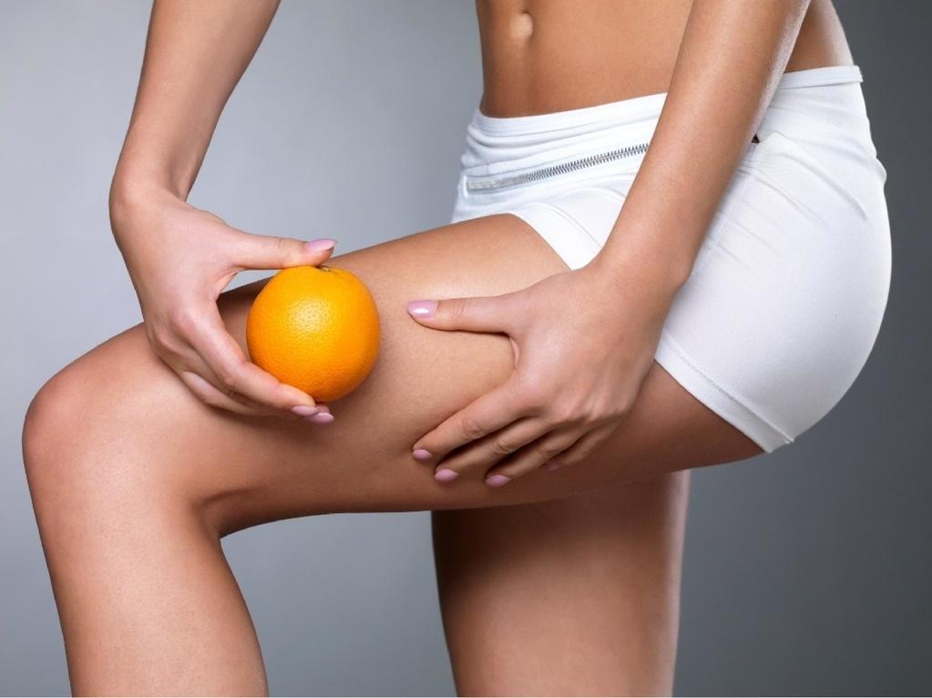 problem z cellulitem - sposób na cellulit